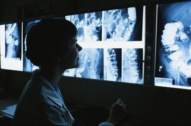 Жировая инфильтрация поджелудочной железы фото