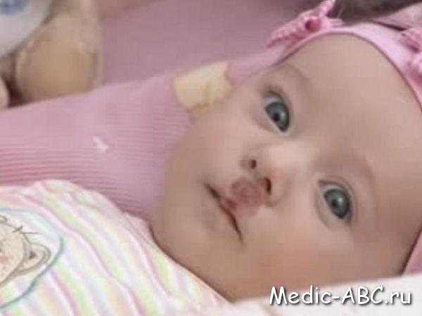 Гемангиома у новорожденных детей