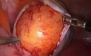 Киста яичника. Медикаментозное лечение без операции