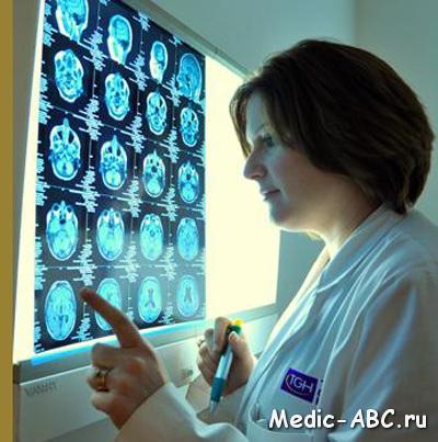 Атрофия головного мозга