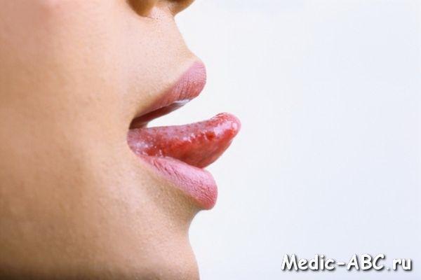 Боль на кончике языка