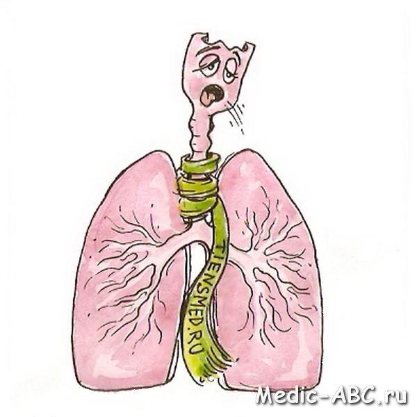 чем лечить бронхит если аллергия на антибиотики