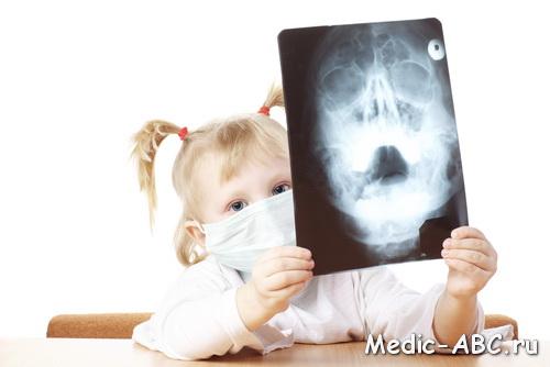 Влажный кашель при насморке у ребенка чем лечить