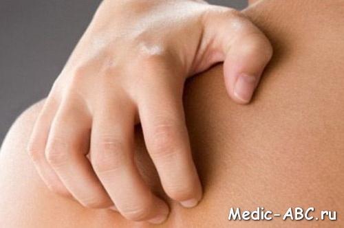 Чем лечить кожный зуд?