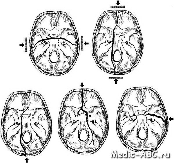 Чем опасен перелом основания черепа?