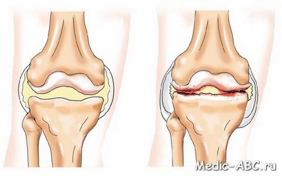Что означает жжение в коленном суставе