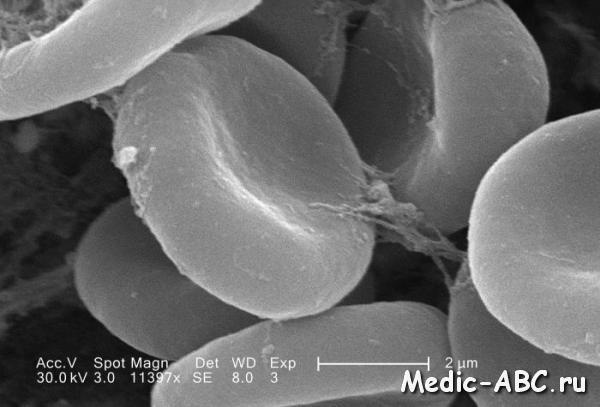 Что такое гемоглобин, для чего он нужен?