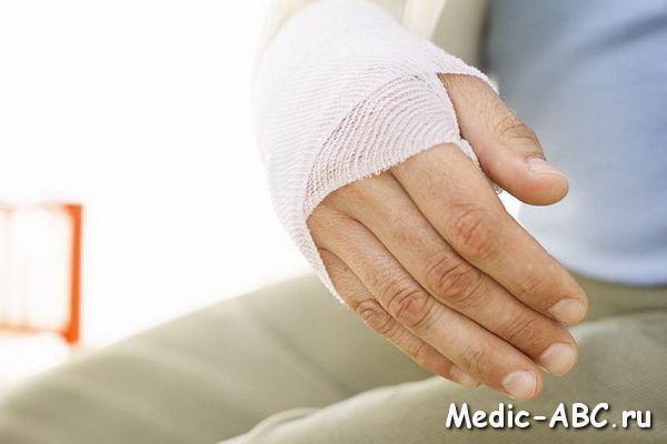 Эффект массажа после перелома руки