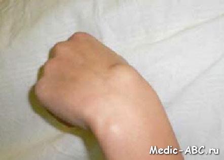 Гигрома кисти, как лечить ее быстро и эффективно?