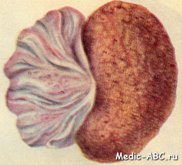 Гломерулонефрит у детей