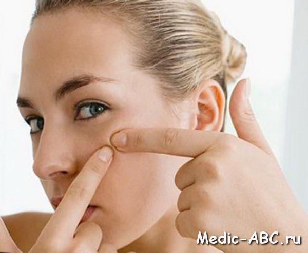 как избавиться от постоянного запаха изо рта