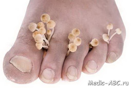 Как избавиться от грибка на ногах
