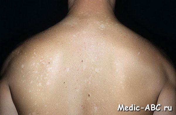 Как лечить слабость в мышцах