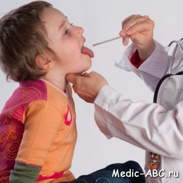 Как лечить ангину у ребенка?