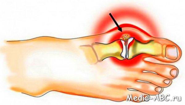 Как лечить артрит народными средствами?