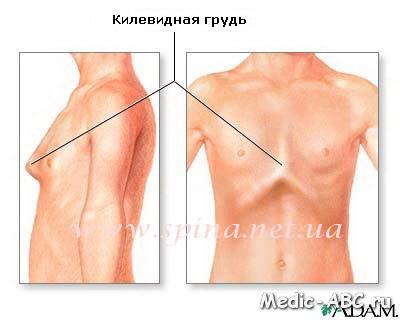 Как лечить деформацию грудной клетки