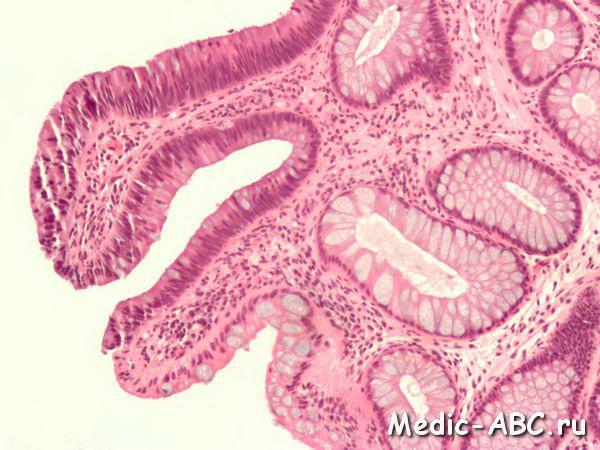Как лечить фиброзную аденому молочных желез