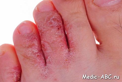 Как лечить грибковое заболевание кожиног