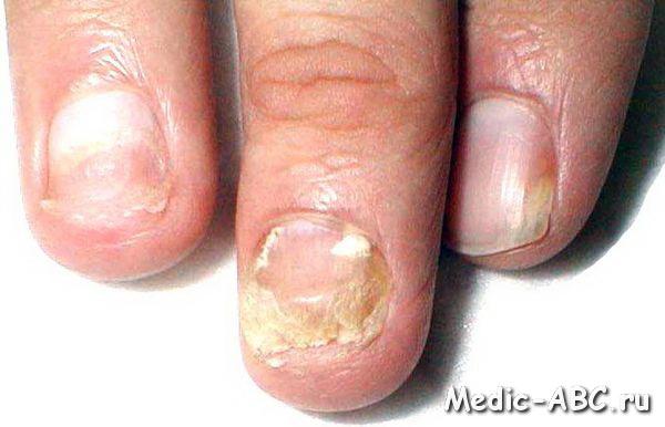 Как лечить грибок на ногтях ног