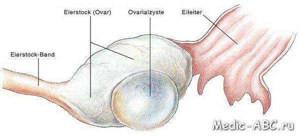 Как лечить кисту яичника