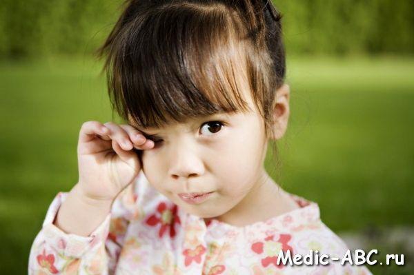 Как лечить коньюктивит у ребенка