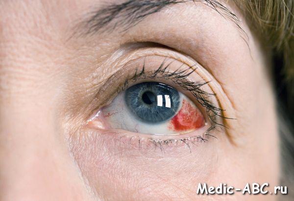 Как лечить кровоизлияние глаз