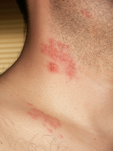 Как лечить лишай на коже