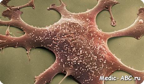 Как лечить микоплазму и уреаплазму