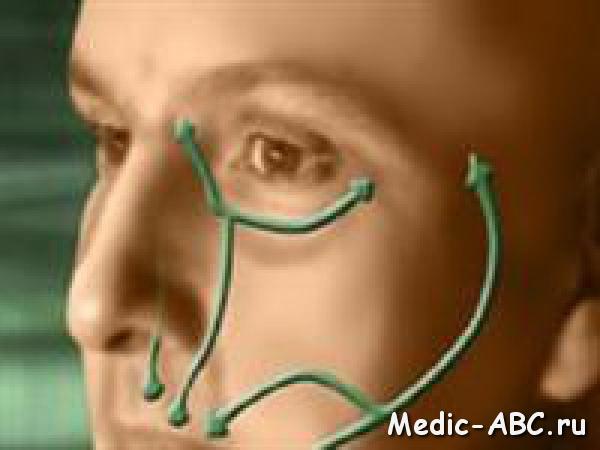 Как лечить невралгию лицевого нерва