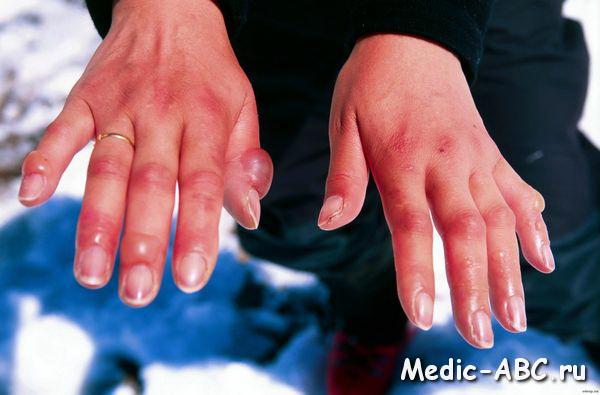 Первая помощь при обморожении рук