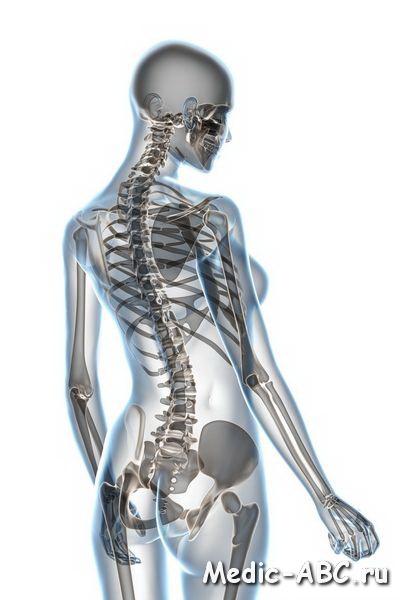 Как лечить остеохондроз позвоночник