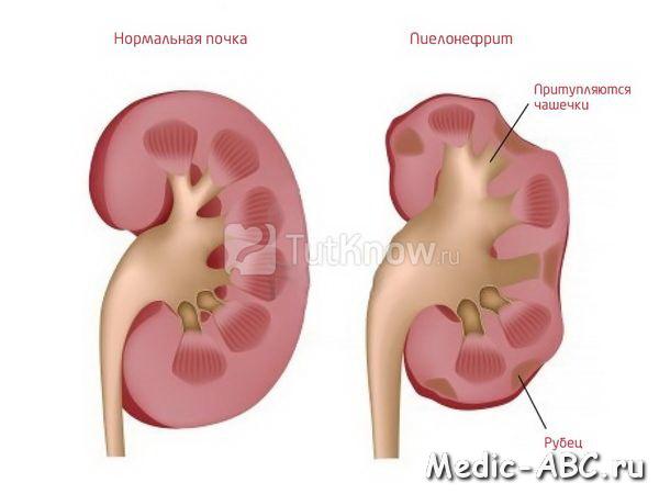 Ментальная причина болезни горла