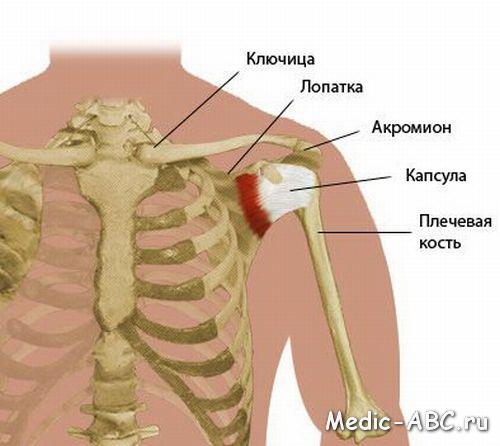 Как лечить растяжение плеча