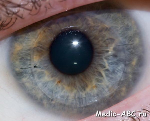 Как лечить роговицу глаза