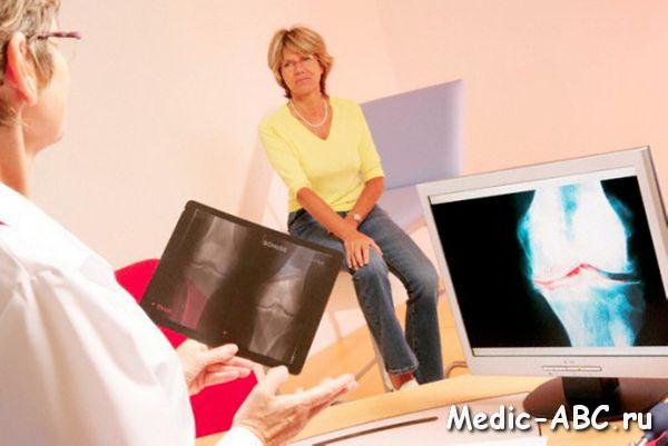 гонартроз коленного сустава как лечить народными средствами
