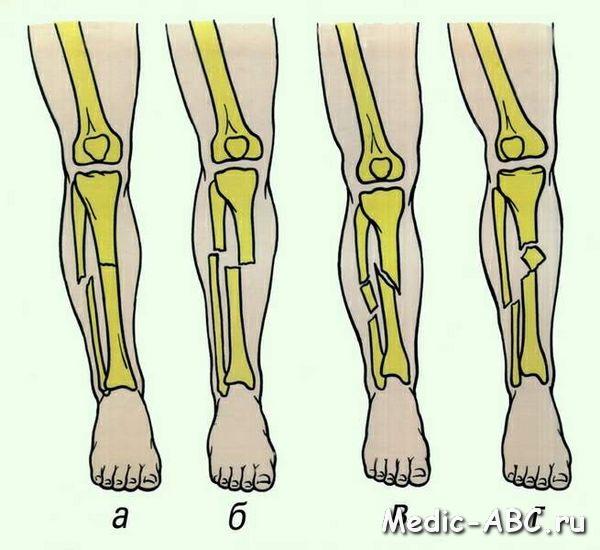 Как лечится перелом ноги?