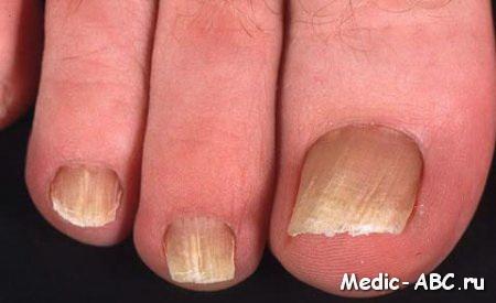 Лекарство от грибка под ногтем
