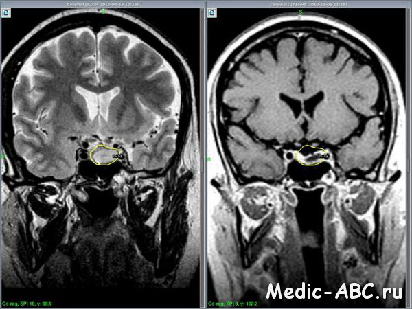 Микроаденома гипофиза - последствия, диагностика, лечение