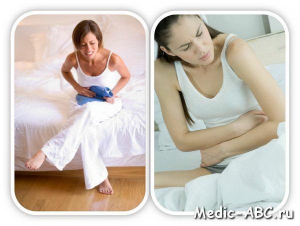 Прободение язвы симптомы