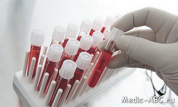 Симптомы при заражении крови