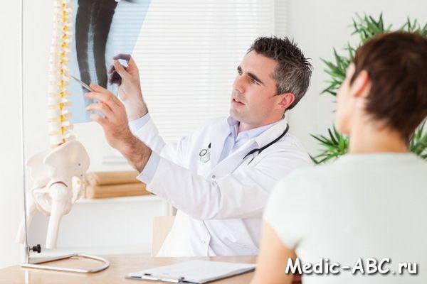 Симптомы шейного хондроза