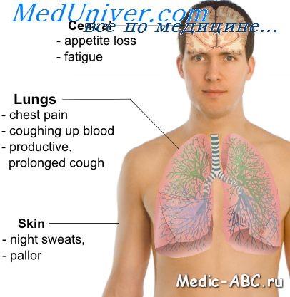 Симптомы туберкулёза лёгких