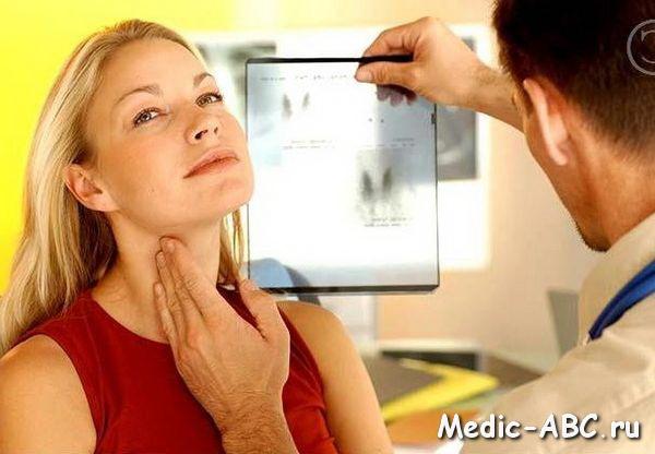 Симптомы увеличения щитовидной железы