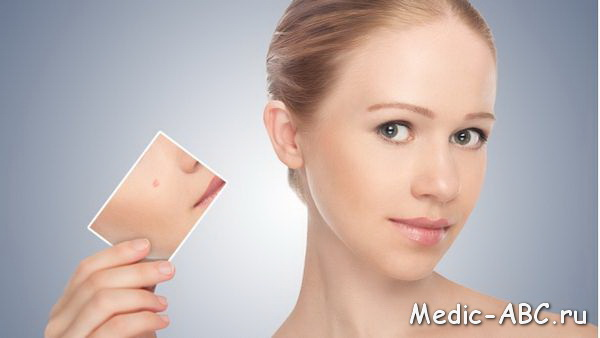 Сыпь на лице и шее, как избавиться от назойливых взглядов?