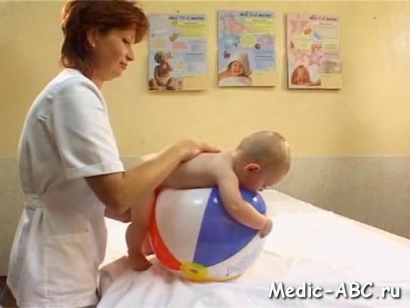Сыпь у месячного ребенка, на что стоит обратить внимание?